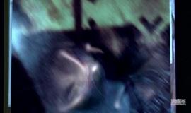 Fringe-1x12-The-No-Brainer_020